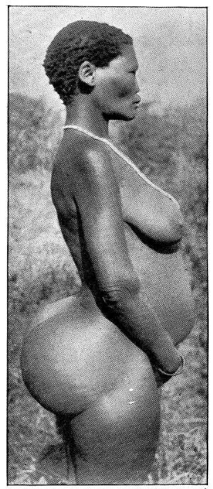 view A female Hottentot, with steatopygy, which results in a protuberance of the buttocks due to an abnormal accumulation of fat