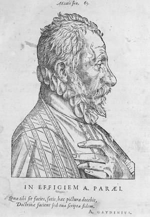 view Portrait of Ambroise Pare [1510 - 1590], French surgeon