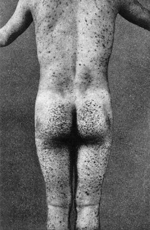 view Scurvy; male figure.