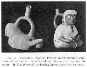 view Peruvian pottery vessels showing amputation of the foot and the placing of a cap over the stump