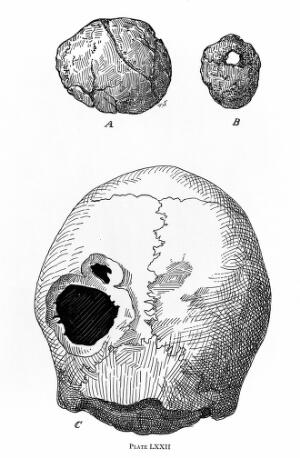view Illustrations of trephanned skulls (A-C)