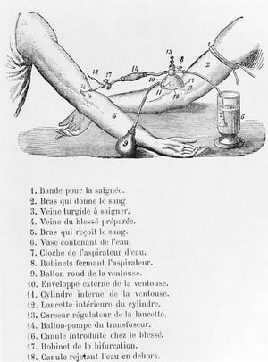 view J. Roussel, blood transfusion, 1876