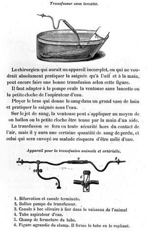 view Transfusion Apparatus, 19th century.