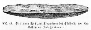 view Stone chisel used for trepanning, New Britain