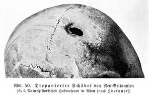 view Trepanned skull, New Britain
