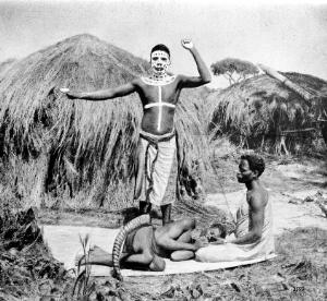 view Medicine-man, treatment of a patient in Central-Africa
