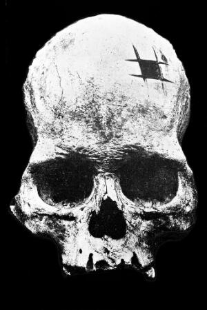 view Anterior aspect of Squiers, Inca Skull, showing trephinning.