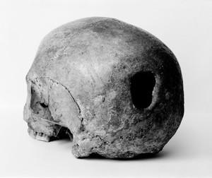 view Edinburgh Skull, trepanning showing hole in back of skull