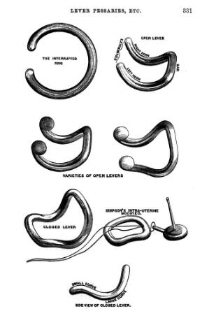 view Obstetrics, Lever pessaries of various types