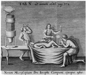 view Illustration to show the use of the microscope in medicine, (Campani's microscopes).