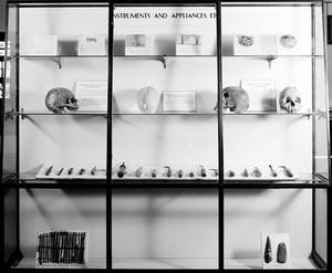 view Wellcome museum, primitive medicine: trephination