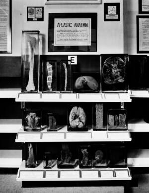 view Wellcome museum: exhibit on Aplastic Anaemia