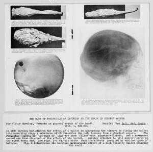 view Sir Victor Horsley, 'Remarks on gunshot wounds of the head'.