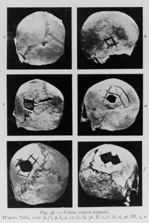 view Skulls showing trephination from R. D' Harcourt