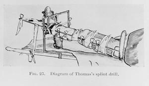 view Thomas's splint, fractures.