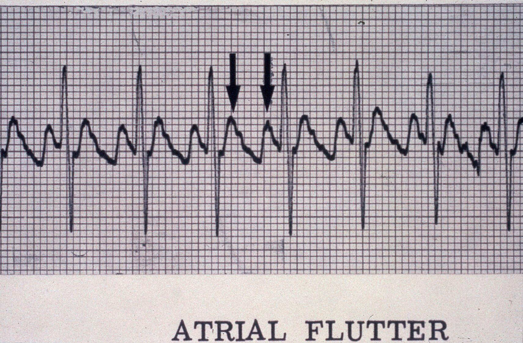 Flutter, atrial   Wellcome Collection