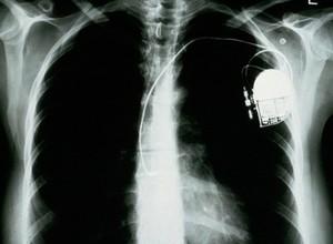 view Pacemaker, atrial anti tachycardia