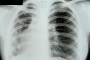 view Scimitar syndrome