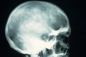 view X-ray; brain cancer (oligodendroglioma)