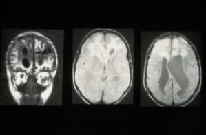 view MRI scan; brain cancer (glioma)