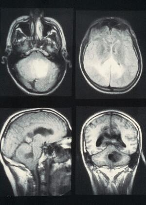 view MRI scan; brain cancer (glioblastoma)