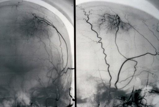 Cerebral angiogram; brain cancer (meningioma)