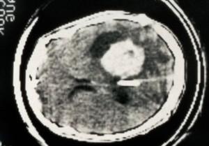 view CT scan; brain tumour (papilloma), choroid plexus