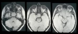 view MRI scan; cancer of the pituitary gland