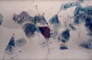 view Gardinerella vaginalis bacteria, clue cell