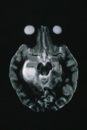 view MRI scan; brain cancer (astrocytoma)