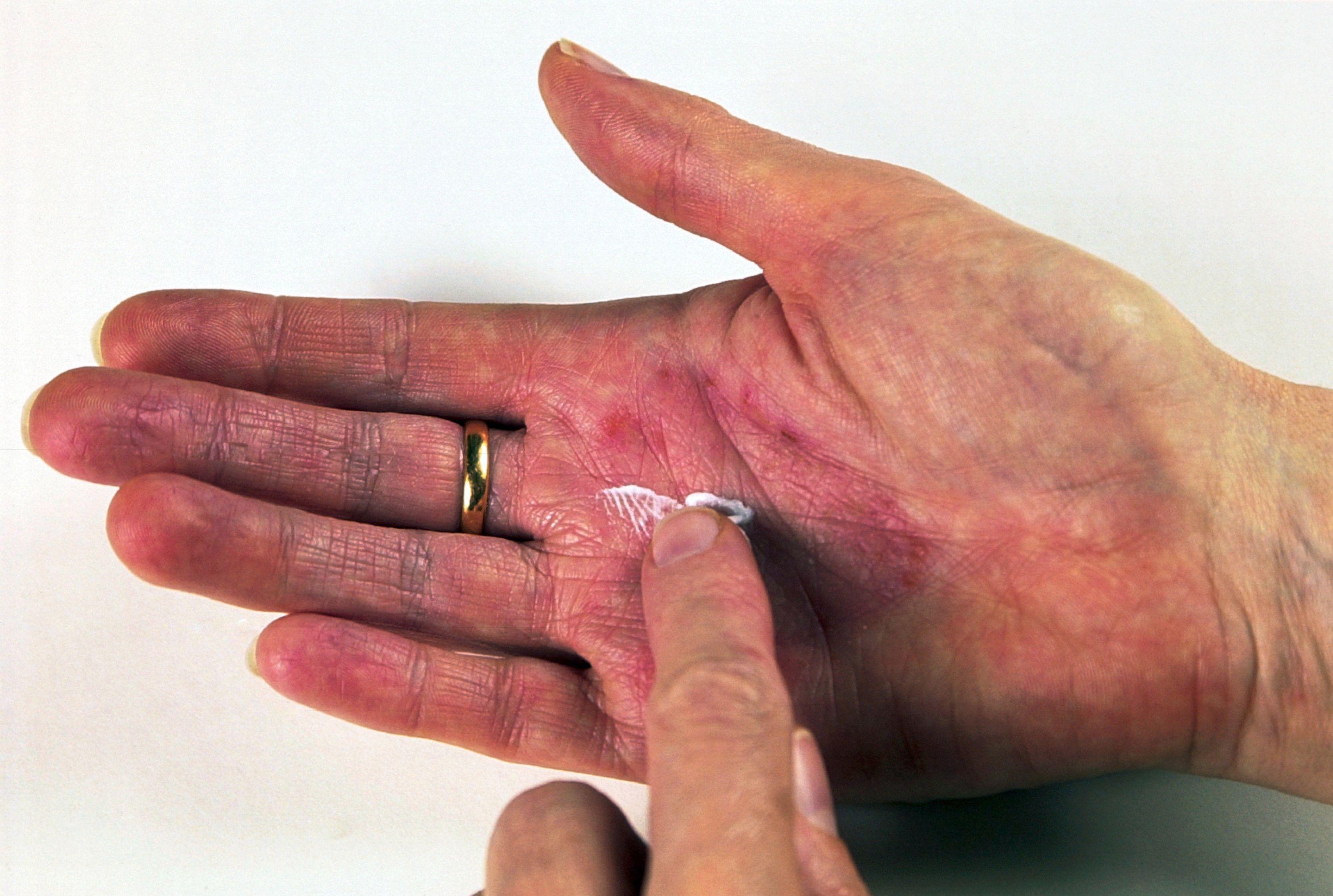 Applying hydrocortisone cream to eczema | Wellcome Collection