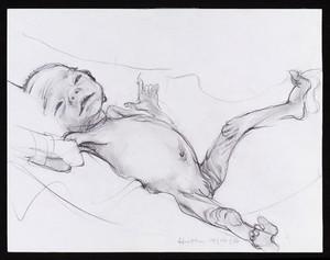 view Alert premature baby.