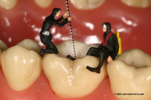 view Root canal