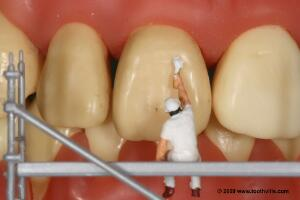 view Tooth whitening