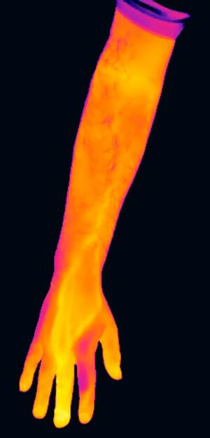 view Thermogram of an infected middle finger, left hand.