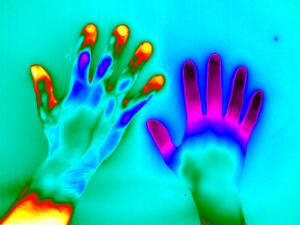 view Raynaud's Phenomenon