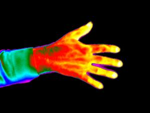 view Thermogram of normal hand