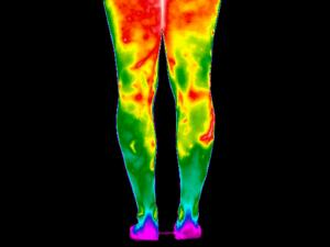 view Varicose Veins, Legs. Female. Illustrated with thermography
