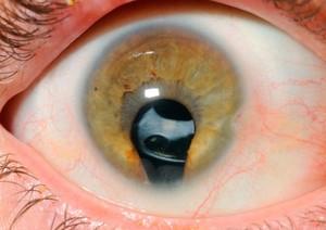 view Iris Coloboma with intra-ocular lens.