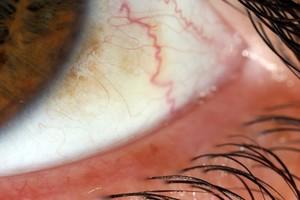 view Sclera (white part) of the human eye
