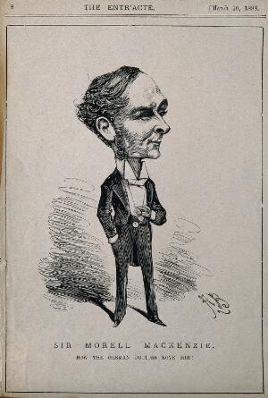 view Sir Morrell Mackenzie. Wood engraving by [A. B.] 1888.