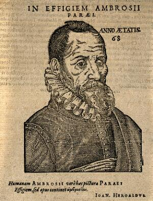 view Ambroise Paré. Woodcut, 1612.