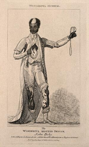 view John Boby, a black man with white markings. Reproduction of an etching, 1803.