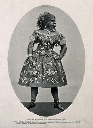 view Julia Pastrana, a bearded woman. Process print after G. Wick.