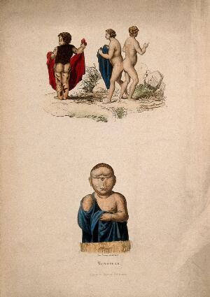 view A boy with a skin disease together with the conjoined twins Judith and Hélène; below them an infant with one central eye. Coloured etching by N.E. Lerouge.