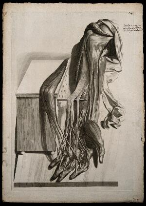 view The flexor muscles of the arm, hand and fingers, separated from each other and raised through the use of a dowel and a perforated box. Engraving after G. de Lairesse, 1739.