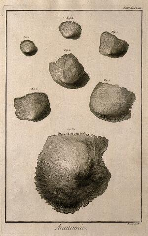 view Different degrees of ossification of the parietal bone of the skull. Engraving by Benard, late 18th century.