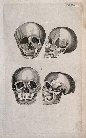 view Human skulls: four figures. Line engraving, 1780/1800?