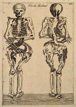 view Deformed human skeleton, front and back views. Line engraving ca. 1808.