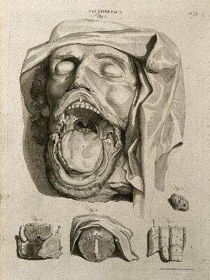 view The head of a dead man with the mouth open showing interior, with details of tonsil and other parts of mouth and throat. Line engraving by A. Bell after G. Bidloo and W. Cowper, 1798.